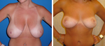 Dr. Rose Breast Reduction