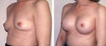 Dr. Rose Breast Augmentation